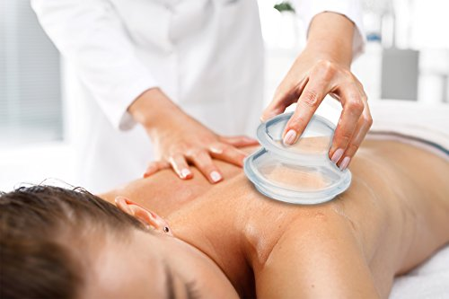 Top 5 Reasons to Receive Cupping Massage